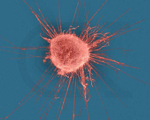 cancercell, breastcancer